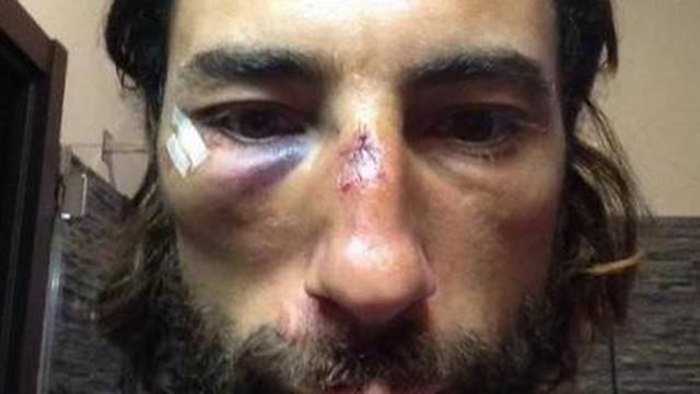 Vittorio Brumotti conciato male dopo una delle tante aggressioni subite